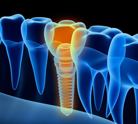Dental Implants Procedure in Claremont, CA | Dr. David Seccombe, DDS - implants