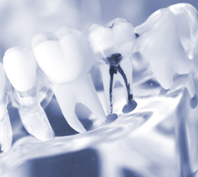 Root Canal Treatment - Claremont, California | Dr. David Seccombe, DDS - root-canal