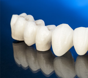 Dental Crowns & Bridges in Claremont, CA | Dr. David Seccombe, DDS - same-day