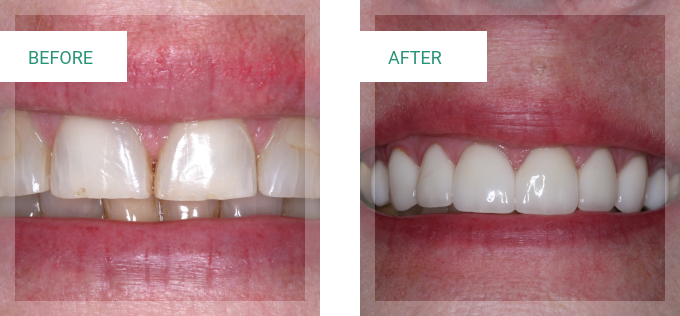 Smile Makeover Gallery | Dentist Claremont CA | Dr. David Seccombe, DDS - testimonial-content-1